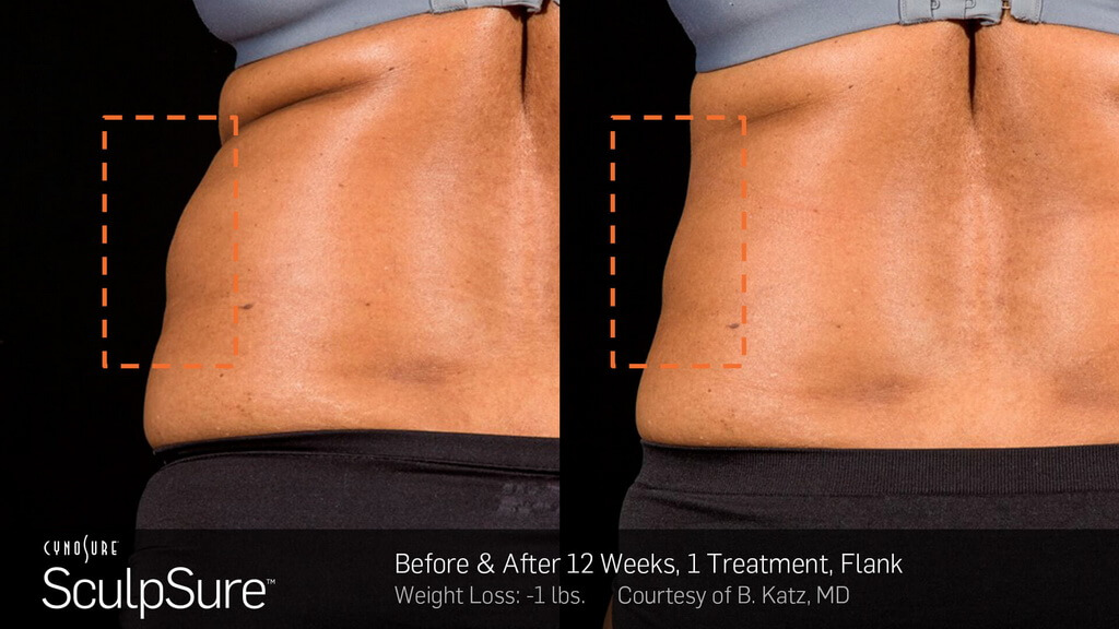 BA sculpsure flank