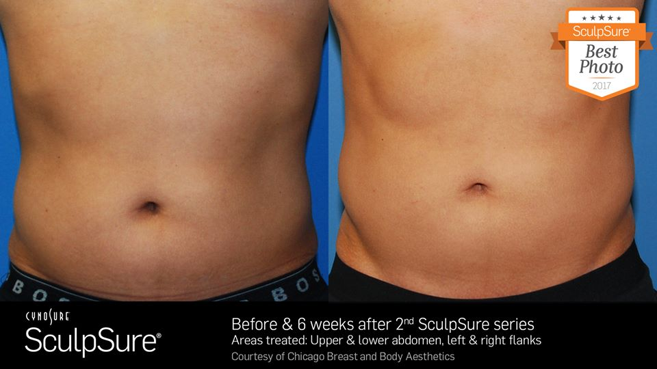 sculpsure b&a chicago