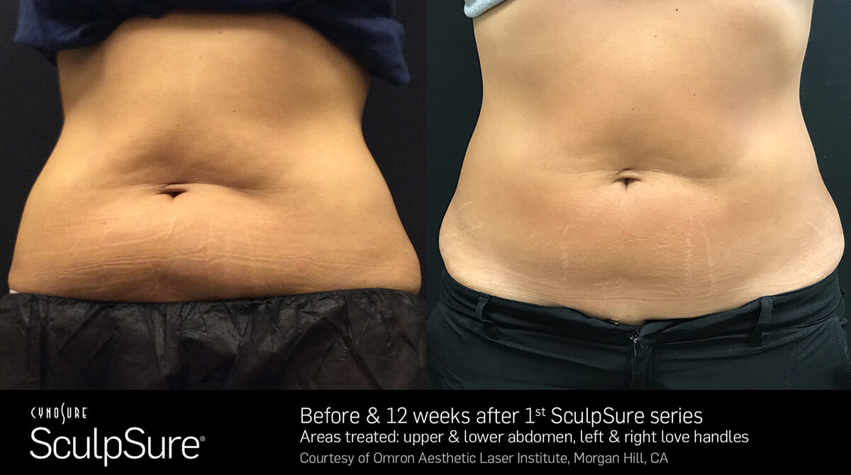 Sculpsure Gold Coast Fat Freezing Amp Coolsculpting