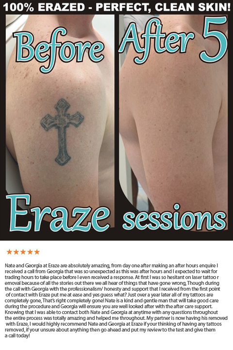 best gold coast laser tattoo removal