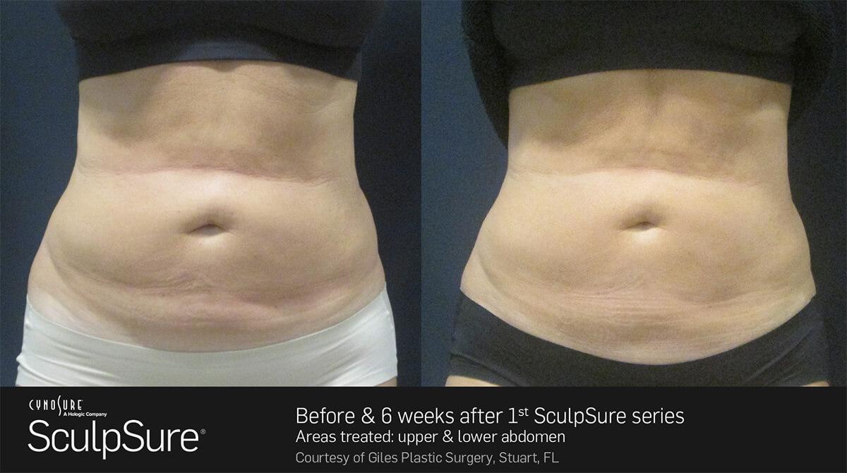sculpt-sure-before-after tummy